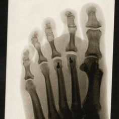 * Why do I have constant foot pain? Awesome Great X-ray of foot . Mysterious Universe, 8 Hours Of Sleep, Foot Pain, Fruit In Season, Knee Pain, It Hurts, Mystery, Health And Beauty, Skeletons