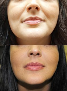 Before and After Juvederm for nasolabial fold