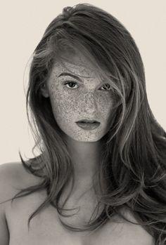 Freckles, pic by Reto Caduff