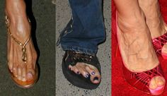 Steven Tyler, Kim Kardashian e mais famosos que têm pés bizarros