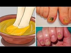 Removal of Nail Fungi with Ethynyl Alcohol 90%, Hydrogen Peroxide,  and White Vinegar... - YouTube