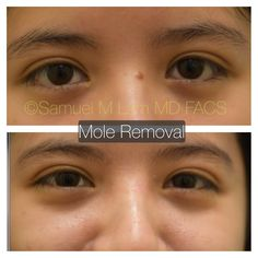 This young woman is shown before and 1 year after a facial mole excision. Mole Removal, 1 Year, Facial, How To Remove, Feelings, Woman, Facial Care, Face Care, Faces
