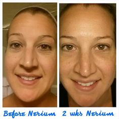 My mug before and after using Nerium AD Age Defying Night Cream. So simple. Just one product to do so much for the skin! Love this stuff!!! laceyface.nerium. com