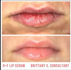 Crows Feet, Love Your Skin, Rodan And Fields, Brittany, Sensitive Skin, Serum, Lashes, Lips, Skin Care