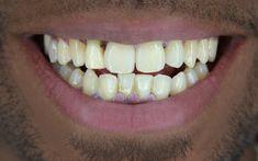 Brighter Image Lab - Official Site | Press On Veneers BILVeneers Perfect Smile Teeth, Misaligned Teeth, Crooked Teeth, Dental Veneers, Dental Cosmetics, Smile Makeover, Smile Design, Smile Because, Beauty Hacks