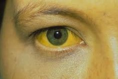 Hepatitis C, Hep B, Hep A: Symptoms, Causes, Treatment Herbal Remedies, Home Remedies, Natural Remedies, Holistic Remedies, Causes Of Jaundice, Gilbert's Syndrome, Arthritis, Staph Infection, Liver Failure