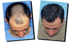 acne scar treatment delhi, Acne...