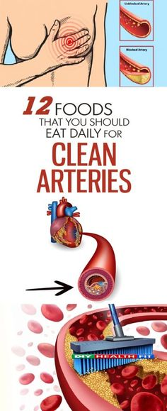 12 foods you should eat daily for clean and unclogged arteries - DIY Health and Fit Juicing For Health, Health Diet, Health And Nutrition, Health And Wellness, Wellness Tips, Loose Weight Diet, Lose Weight, Weight Loss, Clean Arteries