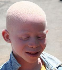 A common myth is that people with albinism have red eyes. In fact there are different types of albinism and the amount of pigment in the eyes varies. Although some individuals with albinism have reddish or violet eyes, most have blue eyes. Some have hazel or brown eyes. However, all forms of albinism are associated with vision problem