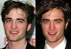 Is Robert Pattinson a product of cosmetic surgery. No one is sure of but if its true then that's how cosmetic surgery can greatly affects you. But makes sure to get the right doctor, visit http://sydneycosmeticplasticsurgeon.com.au/ for more details.