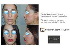 Vor und nach operativer Nasenkorrektur - Rhinoplasty Convenience Store, Linz