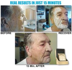 Another amazing Recover Mask before and after WOW! www.seacretdirect.com/robin64