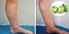 La plupart de femmes prêtent une attention particulière à leur apparence physique notamment l'apparence de leurs jambes. La bonne nouvelle que nous allons annoncer à ces femme est qu'une étude récent vient de découvrir un traitement naturel pour éliminer les varices. Ce qui est en…