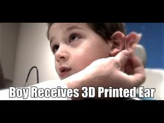 Boy receives 3D printed ear.