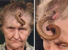 Cornu Cutaneum - Skin tumors that look like animal horns