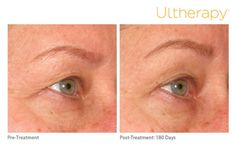 In this before and after, you can see the progression before treatment, to 6 months post-treatment. What a difference Ultherapy® makes!  *The non-invasive Ultherapy® procedure is U.S. FDA-cleared to lift skin on the neck, on the eyebrow and under the chin as well as to improve lines and wrinkles on the décolletage. For full product and safety information, visit www.ultherapy.com/IF