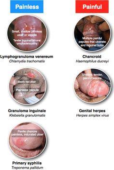 Genital ulcer inf