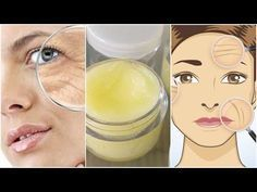 Powerful Multifunctional Homemade Cream Removes Deep Wrinkles From Your Face In Just 7 Days Face Mask For Blackheads, Prevent Wrinkles, Wrinkle Remover, Aging Cream, Homemade Skin Care, Tips Belleza, Anti Aging Skin Care, How To Remove, Factors