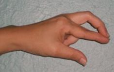 "Muscle testing is usually done when one person pushes down on the extended arm of another person to test for muscle weakness to use as an indicator of energy blockage (substance sensitivities and energetic reactions). This Finger Over Finger self muscle test has the advantage of letting you test yourself, or others using yourself as the ""surrogate""."