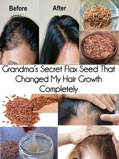 Hair Remedies Grandma's Secret Flax Seed That Changed My Hair Growth Completely Hair Remedies For Growth, Hair Growth Tips, Hair Loss Remedies, Hair Care Tips, Hair Growth Mask, Hair Vitamins, Vitamins For Hair Growth, Healthy Hair Growth, Hair Regrowth