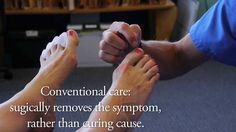 Do you suffer from ingrown toenails? Check out this video #naturalfoothealth #DrRay #correcttoes