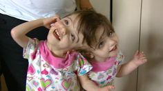 Siamese twins pictures video