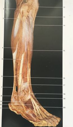 Lateral aspect muscles of right leg and foot: anterior, brevis, Human Body Anatomy, Muscle Anatomy, Bodies Exhibit, Muscular System, Muscle Body, Anatomy Tutorial, Anatomy And Physiology, Anatomy Reference, Massage Therapy
