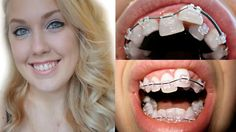 Braces Transformation: Before And After Braces Time Lapse: Ashley Craig Braces Before And After, After Braces, Dental Braces, Teeth Braces, Braces Transformation, Braces Problems, Cute Braces Colors, Brace Face, Orthodontics
