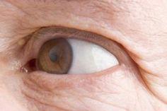 Home Remedies & Tips For Under-eye Wrinkles | LIVESTRONG.COM