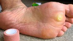 Verrue Plantaire : le Remède Surprenant mais Efficace. Une peau de banane :)