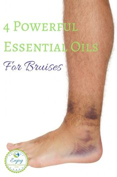 Need your bruises to heal faster. Get the profits of using essential oils for bruises that will help you get recovery from bruises fast. Visit us to read more! Essential Oil For Bruising, Doterra Oils, Doterra Essential Oils, Natural Essential Oils, Essential Oil Blends, Yl Oils, Young Living Oils, Young Living Essential Oils, Healing Oils