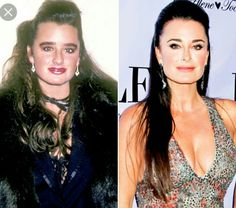 Kyle Richards before and after