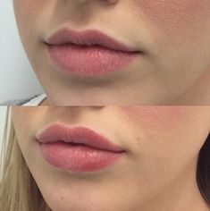 Lip fillers provide a quick and easy way to add extra volume and shape to lips. Dermal Fillers Lips, Lip Fillers, Natural Lip Plumper, Natural Lips, Botox Lips, Lip Injections Juvederm, Lip Job, Lip Augmentation, Aesthetic Clinic