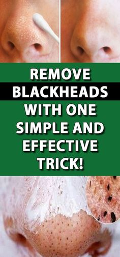Blackheads are like tiny parasites that almost always mess up with your wish of having a clear skin. So what are blackheads and how can you get rid of them effectively and naturally? Health And Wellness Quotes, Wellness Fitness, Wellness Tips, Fitness Diet, Health Fitness, Natural Remedies For Allergies, Natural Headache Remedies, Natural Remedies For Anxiety, Lose Weight In A Month