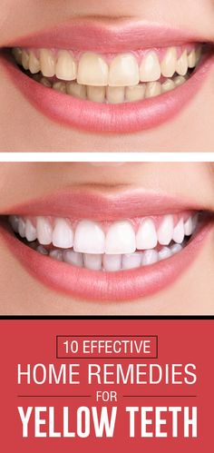 Instead of toothpaste: This home remedy makes your teeth whiter- Statt Zahnpasta: Dieses Hausmittel macht eure Zähne weißer Instead of toothpaste: This home remedy makes your teeth whiter – BRIGITTE - Beauty Make Up, Beauty Care, Diy Beauty, Top 10 Home Remedies, Natural Teeth Whitening, White Teeth, Tips Belleza, Beauty Nails, Health And Beauty