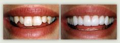Porcelain veneers. Before (left), After (right). Cosmetic dentistry by Dr. Mike Maroon of Advanced Dental in Berlin, CT.