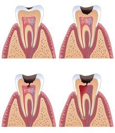 Quando la #carie arriva sino alla polpa della camera allora si esegue la pulpotomia, l'asportazione della sola polpa camerale tramite escavatori. Questo serve a salvare la polpa radicolare in modo da salvare le radici. Dopo l'asportazione si crea un'emostasi della polpa radicolare e si esegue un'otturazione provvisoria. Al controllo successivo si potrà procedere alla ricostruzione definitiva con i cementi. #teeth #dentist