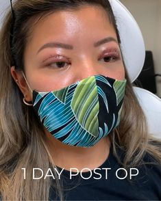 Our patient allowed us to document her healing process from double eyelid surgery - check out her progress 1 month post surgery! 🙌🏽 #eyelidsurgery #cosmetics #aesthetic #plasticsurgeon #before #after Hooded Eye Surgery, Double Eyelid, Eyelid Surgery, Asian Eyes, Hooded Eyes, Beauty Logo, Makeup Transformation, Permanent Makeup, 1 Month