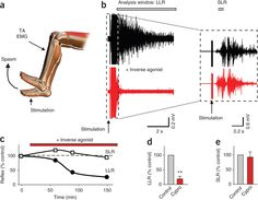 Recovery of motoneuron and locomotor function after spinal cord injury depends on constitutive activity in receptors Muscle Contraction, Spinal Cord Injury, Muscle Spasms, How To Show Love, Recovery, Drugs, Activities, Watch, Videos
