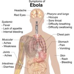 Even as the CDC and U.S. gov't says otherwise, the U.S. is woefully unprepared to deal with an Ebola pandemic http://baystateconservativenews.com