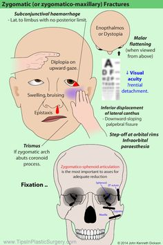Zygomatic Fractures. Use this diagram to help you recognise the patterns and…