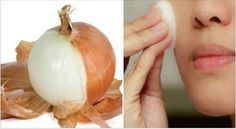 In today's article we will reveal the amazing health benefits of onion peels. After reading this article, you will never throw away onion peels. Although, onion peels aren't edible, but they offer oth Onion Benefits Health, Coffee Health Benefits, Andreas Moritz, Skin Tag, Warts, Mole, Natural Remedies, Detox, At Least