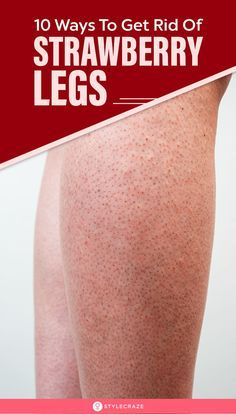10 Natural Ways To Get Rid Of Strawberry Legs: Do you have dark spots on your legs? Do the pores loo