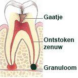 Granuloom