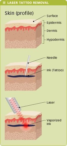 This is a good picture that allows people to really see and understand exactly where ink is deposited in the body and how it's effected by the laser removal process.  There is one thing that should be added to the third picture. During laser tattoo removal only about 3 to 5% of vaporization takes place, the rest of the results are fragmentation. The ink being broken into microscopic particles so the can be filtered out of your body in 8 to 10 weeks through your lymphatic system.