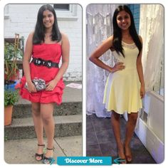 Image result for losing weight before and after teens #fitnessbeforeandafterpictures, #weightlossbeforeandafterpictures, #beforeandafterweightlosspictures, #fitnessbeforeandafterpics, #weightlossbeforeandafterpics, #beforeandafterweightlosspics, #fitnessbeforeandafter, #weightlossbeforeandafter, #beforeandafterweightloss