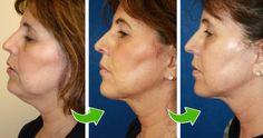 6 účinných způsobů, jak se zbavit ochablého obličeje a povislého krku. Omládnete o 15 let! -