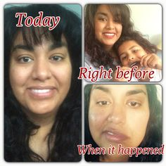 7/16/16 day 365 One whole year of Bell's palsy