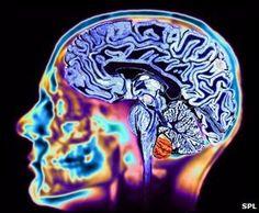 MRI scan of a brain - beautiful