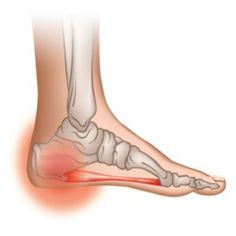 Home Remedies For Heel Spurs - Natural Treatments & Cure For Heel Spurs | Find Home Remedy